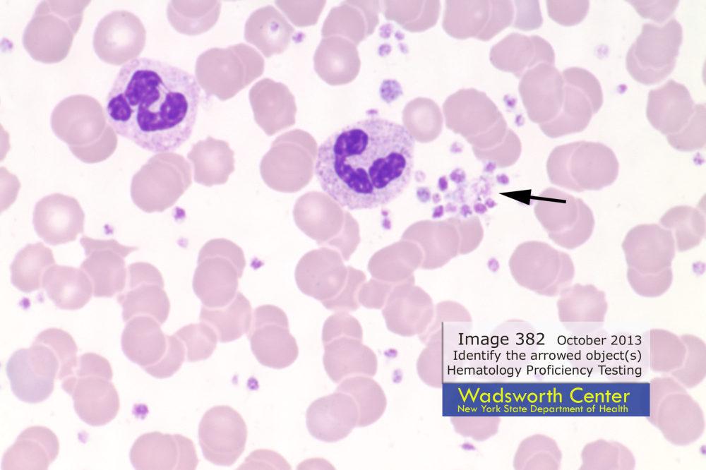 Platelets Clumps