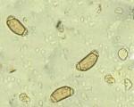 Artifact (Bee pollen)