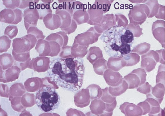 vacuolized neutrophils  Vacuolization Of Neutrophils
