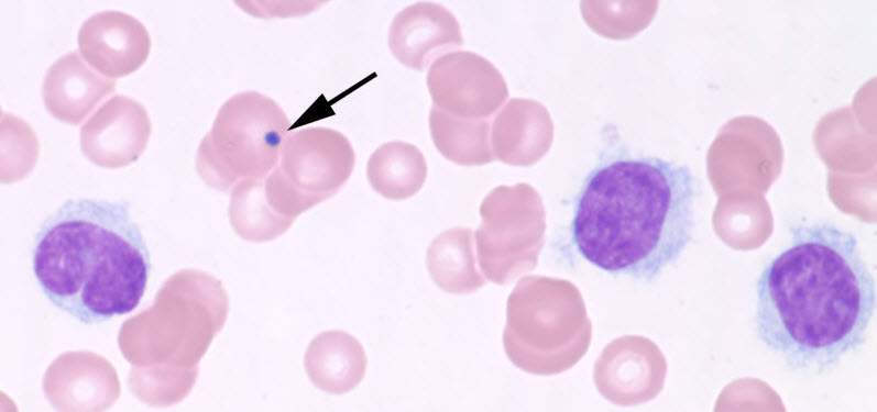 leukemia Hairy cell cell