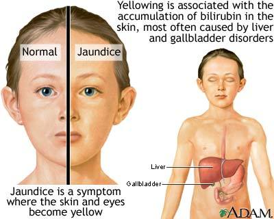 jaundice symptoms and causes medical laboratories