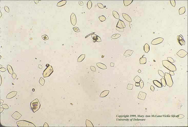 Crystals In Urine Www Pixshark Com Images Galleries