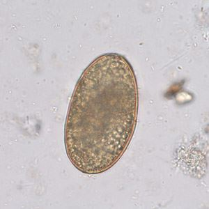 Infertile, decorticated egg of Ascaris lumbricoides