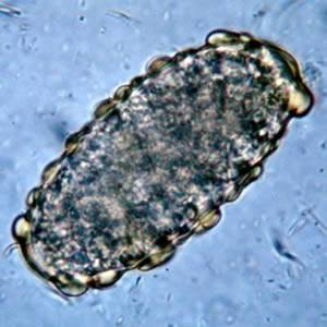 Unfertilized egg of A. lumbricoides