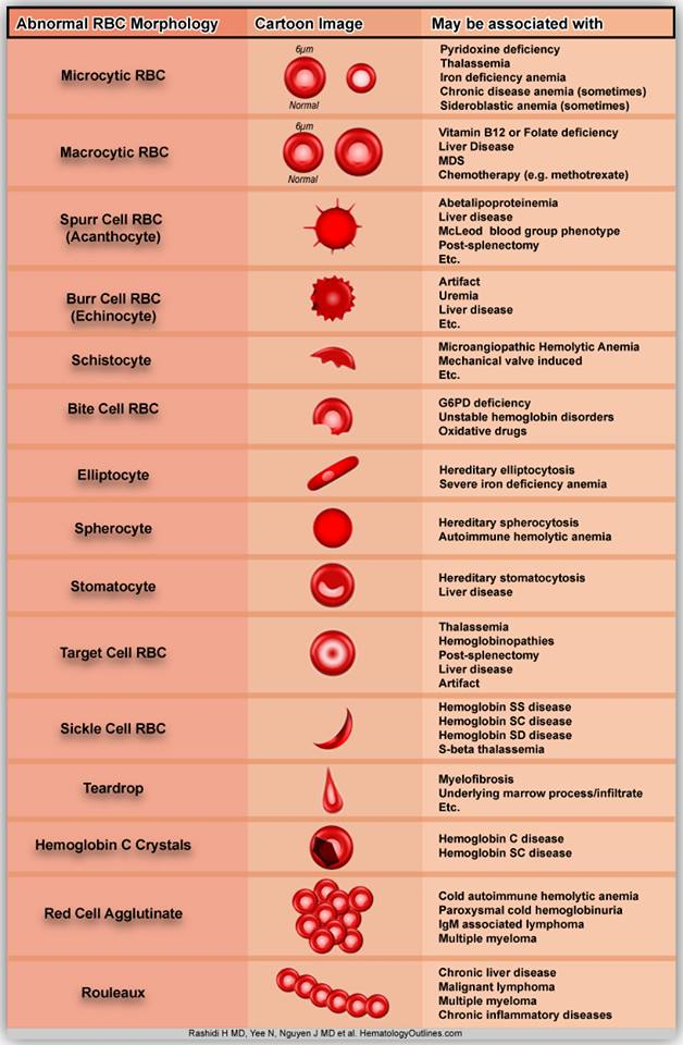Abnormal Red Blood Cells Morphology And Possible Causes