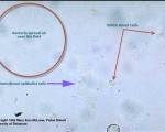 Bacteria, transitional epithelial cells, and white blood cells