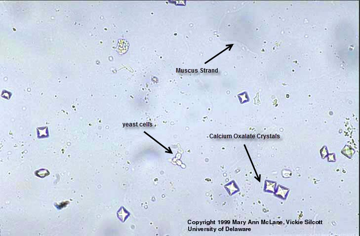 Calcium Oxalate Crystals and Mucus