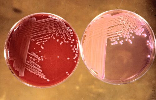 Klebsiella pneuomoniae on Blood agar on the left and Macconkey agar on the Right