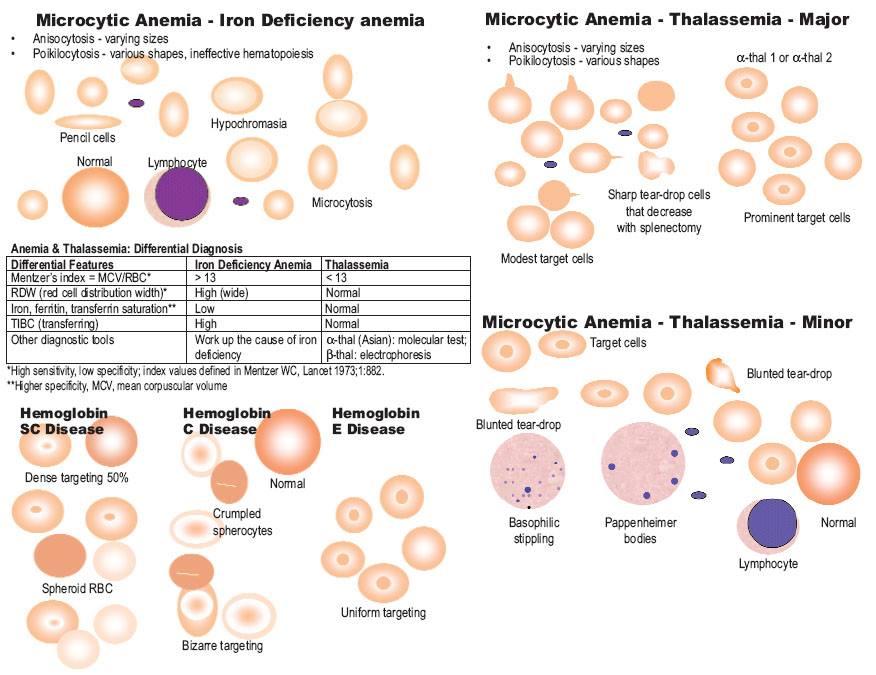 Microcytic Anemia between IDA and Thalassemia
