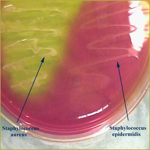 Staphylococcus - Mannitol Salt Agar Plate