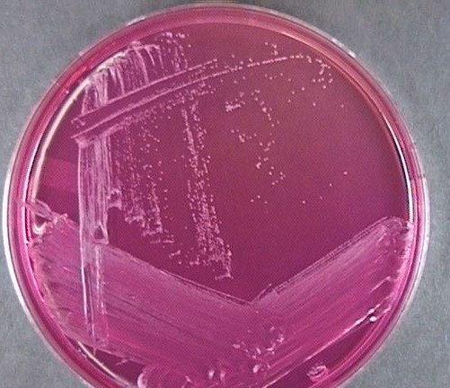 Staphylococcus epidermidis on Mannitol Agar