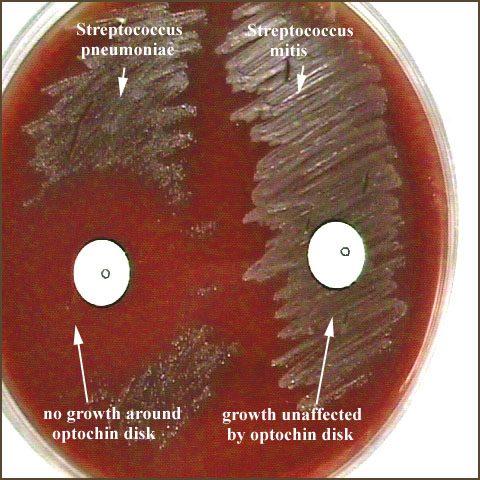 Streptococcus-Optochin Sensitivity TestingStreptococcus Salivarius Hemolysis