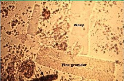 Waxy and Granular Urine Casts