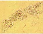 White Cells Cast
