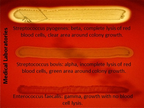 hemolysis on blood agar