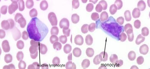 monocyte and reactive lymphocyte