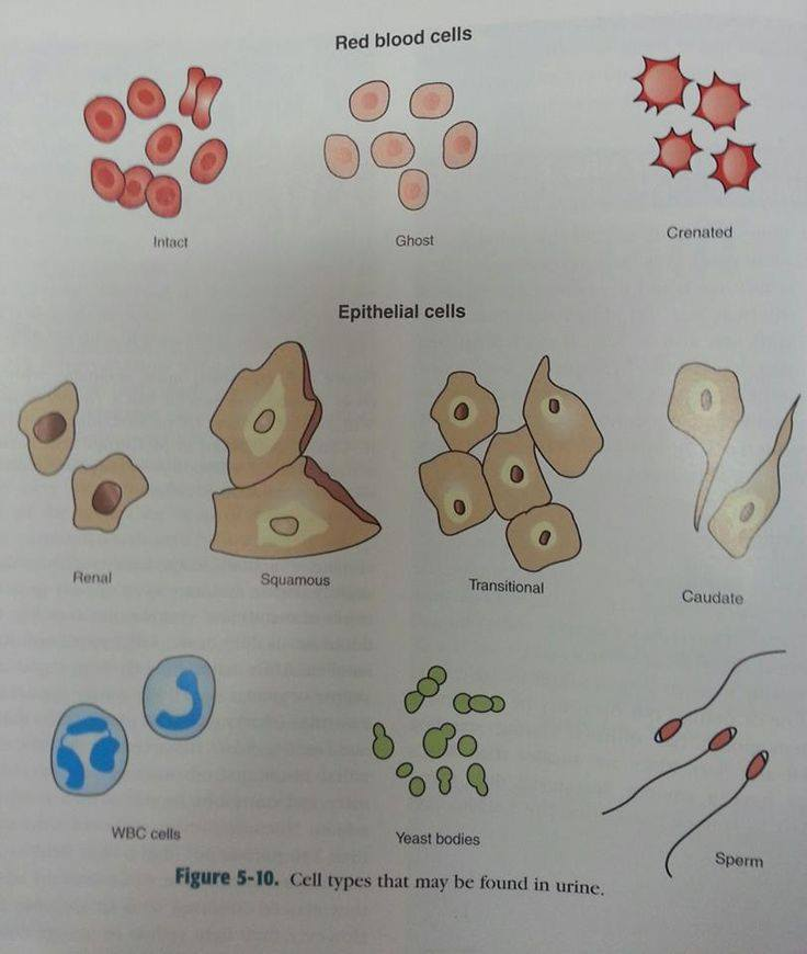 some cells that can be found in urine