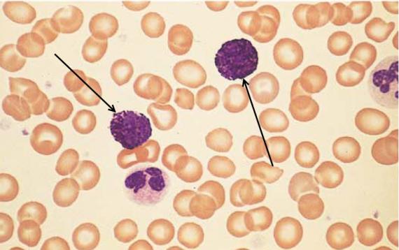 Basophils in blood smear