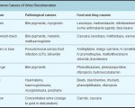 Common causes of Urine discolouration
