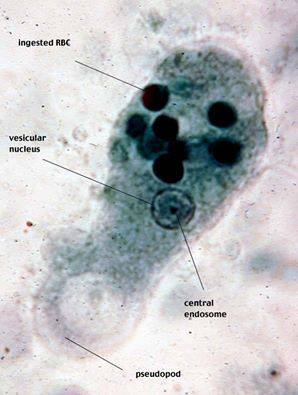 Entamoeba histolytica trophozoite | Medical Laboratories