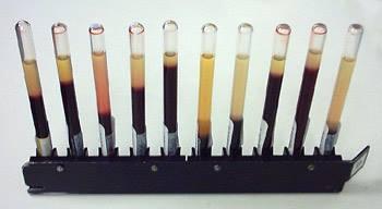 Erythrocyte sedimentation rate
