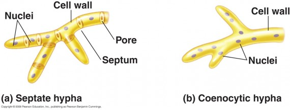 Forms of hyphae - Septate and Coenocytic Hyphae
