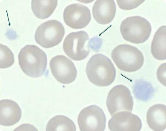 Grey Platelet Syndrome (GPS)- Patient Smear (Large agranular platelets)