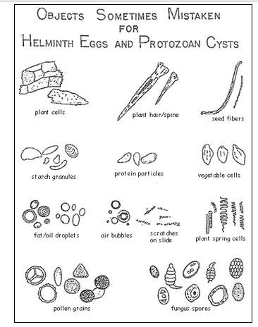 Helminth Eggs and Protozoan Ceysts Artifacts
