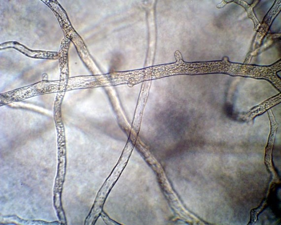 Non-Septate Hyphae (Coenocytic hyphae)
