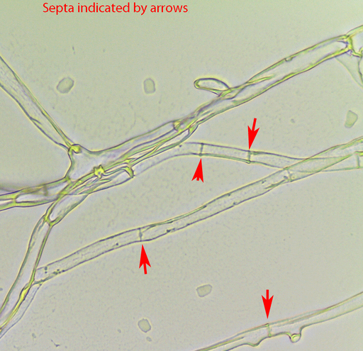Penicillium is a septate fungus - the individual cells are separated by cross walls called septa