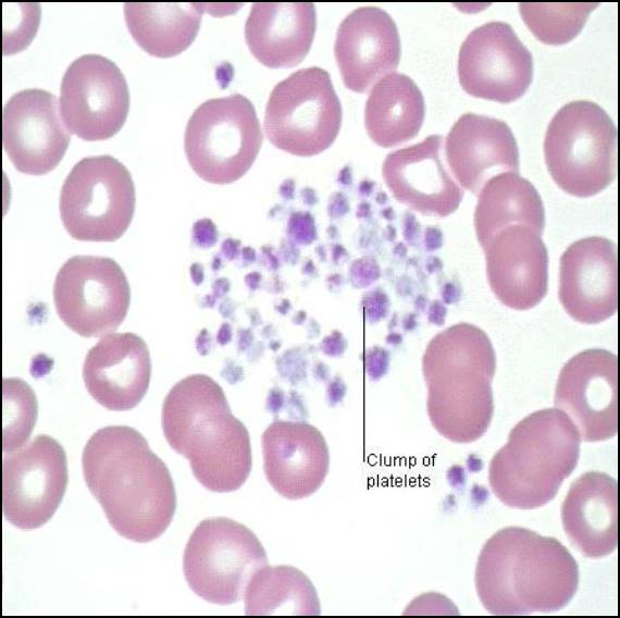 Platelet Clumping or Aggregation