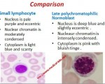 Small lymphocyte and Polychromatophilic Normoblast Comparision