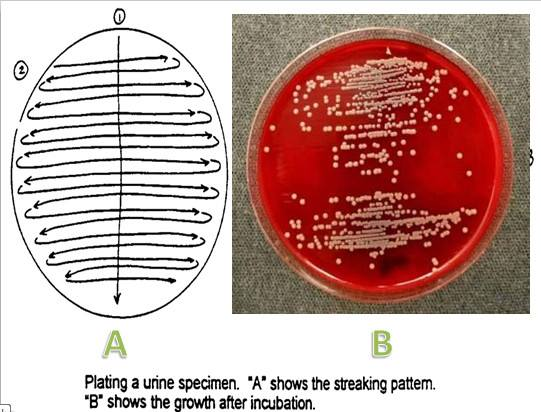 Streaking pattern of urine specimen