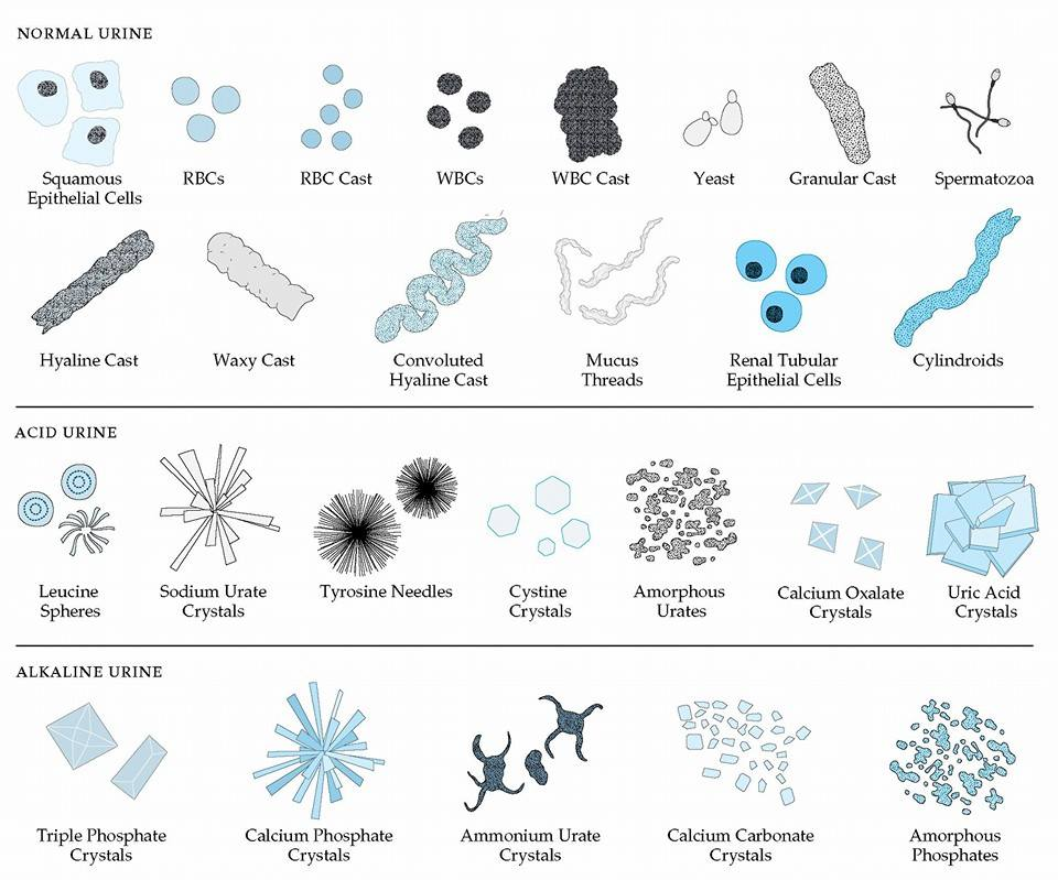 urinalysis elements | medical laboratories, Skeleton