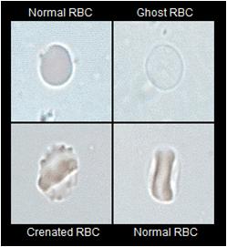rbc morphology in urine