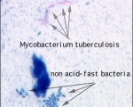 smear of acid fast staining
