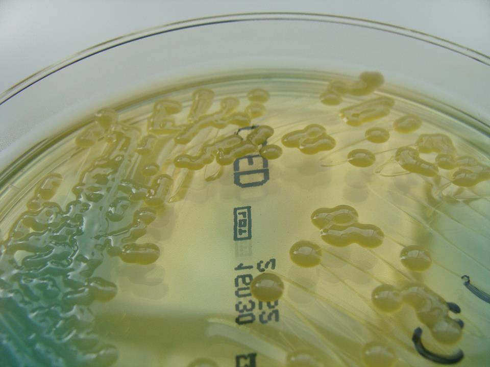 K. pneumoniae on  C.L.E.D Agar