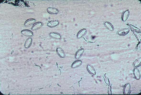 Enterobius vermicularis ovas using scotch tape test