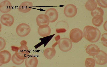 Hemoglobin C Crystals and Target Cells