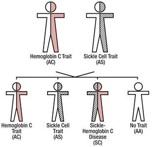Hemoglobin SC Disease Inheritance