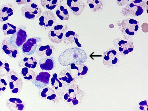 Naegleria Fowleri Detection And The Amebic