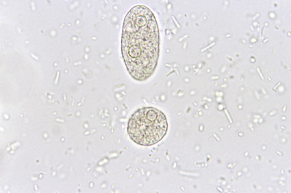 Entamoeba histolytica/dispar. SAF-fixed specimen, wet mount examination. Above, an elongated trophozoite with two nuclei (telophase). Below, a rounded one (pre-cystic form) with dot-like karyosome.