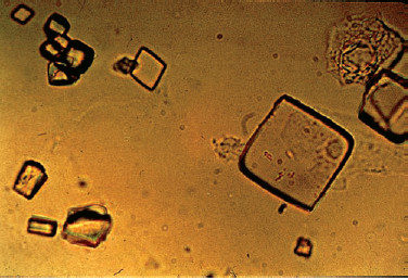 Uric acid crystals (X400).