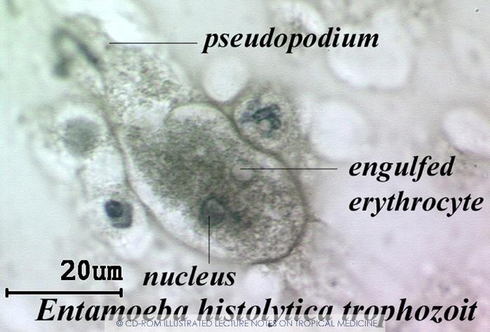E.histolytica trophozoite