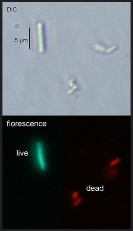 Ecoli Live Dead Staining with DNA dyes