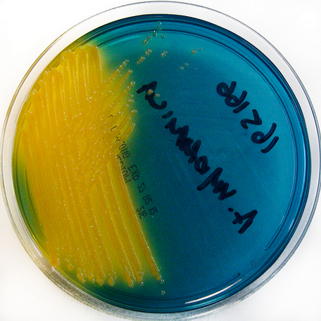 Aeromonas sp yellow colonies on TCBS Agar