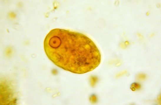 Entamoeba coli parasite | Medical Laboratories