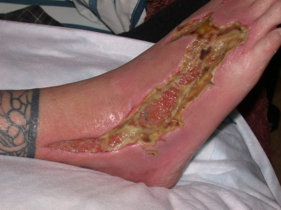 Foot Infection with Aeromonas hydrophila