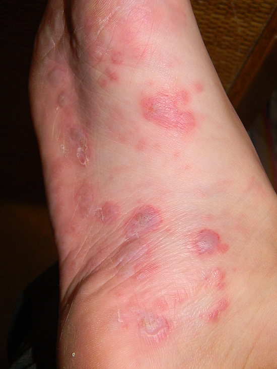 Foot with Blisters and Rash