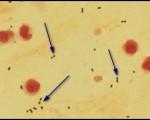 Streptococcus pneumoniae diplococci